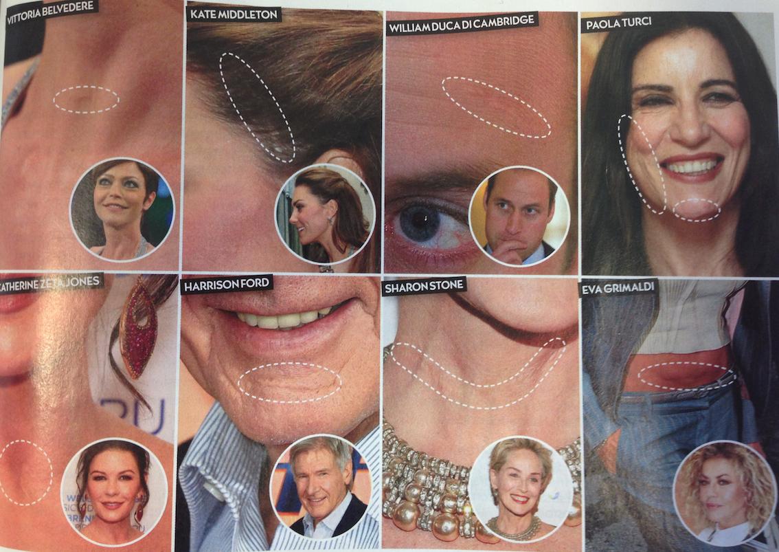 Il processo di cicatrizzazione ha una durata e un esito diverso a seconda della singola persona