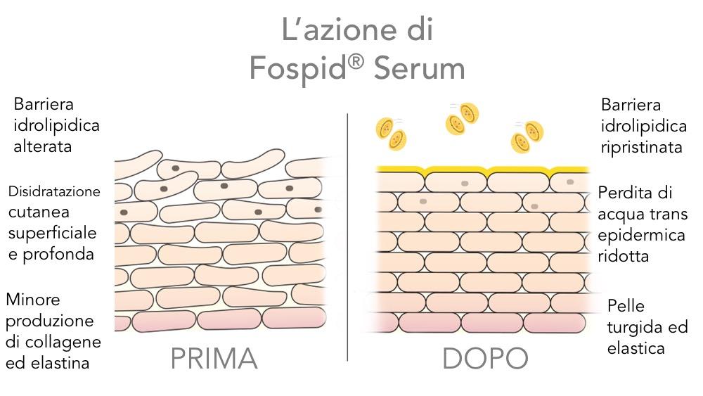 Fospid Serum di Skinius è il siero per il viso efficace contro rughe, macchie cutanee, cicatrici e smagliature
